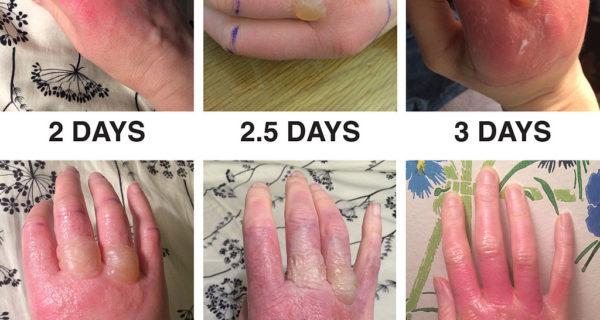 Henna And Phytophotodermatitis